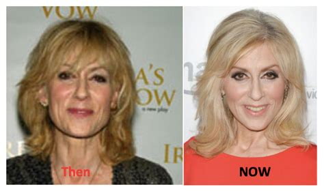 Judith Light Before Weight Loss Dvgala