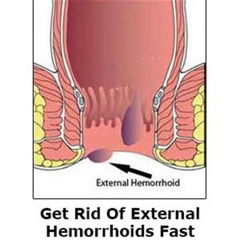 hemroids external hemorrhoids