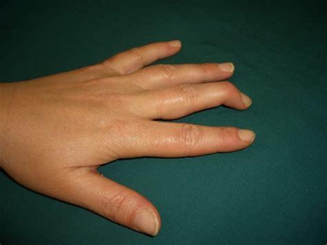 Bony Knobs On Finger Joints by Mallet Finger