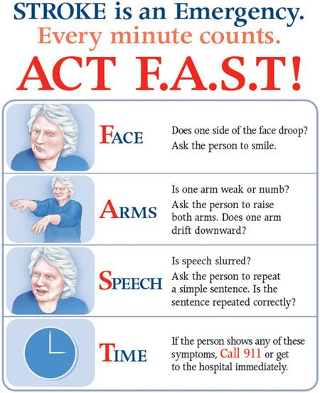 signs of a stroke in a stroke signs types and recovery welcome home care