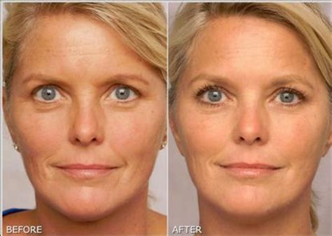 Serum Lefery Acr tretinoin before and after wrinkles www pixshark