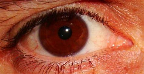 vedere mosche volanti occhi a torino una nuova tecnica toglie le mosche