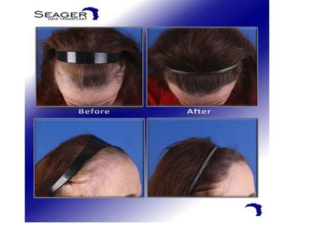 female pattern hair loss depression 14 best images about hair transplants for women on