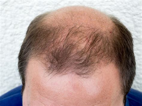 hair loss 50 years dht dihydrotestosterone what is dht s role in baldness