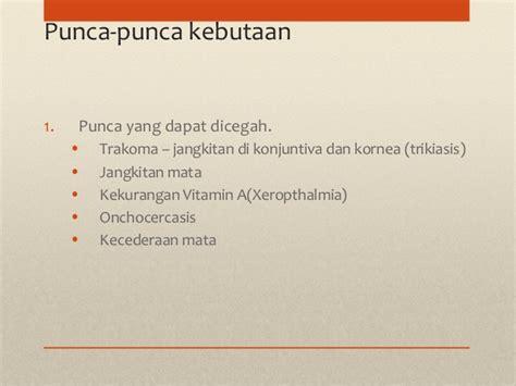 Vitamin Mata penjagaan mata primer