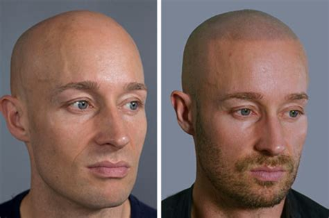 tattooed hairline receding hairlines alopecia and baldness would you get a