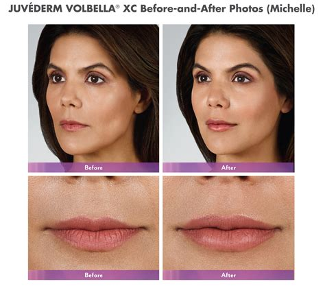 juvederm hair styles volbella lips cost hairsstyles co