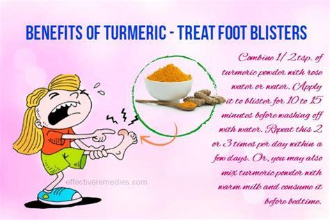 turmeric treats 80 health benefits of turmeric its uses side effects