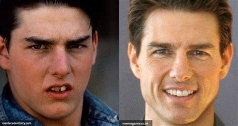 celebrities  dental implants  cosmetic dentistry