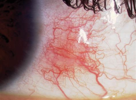 conjunctival injection ciliary injection opthalmology