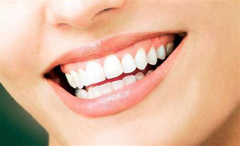 home remedies for teeth whitening dentist bondi