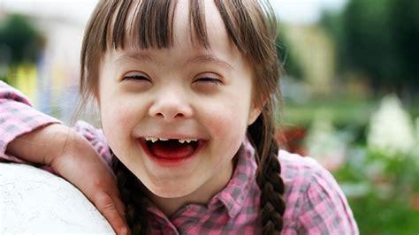 imagenes niños sindrome down jugando indiana proh 237 be abortar a los ni 241 os con s 237 ndrome de down