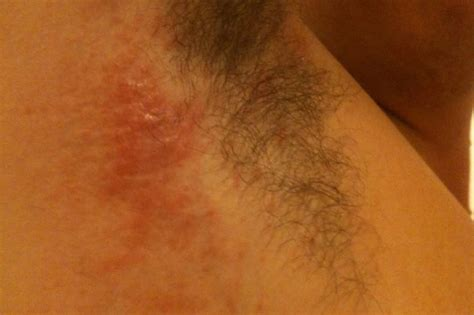 underarm rash causes red patch under armpit images