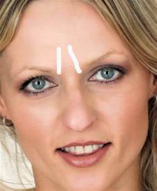 how to remove wrinkles between eyebrows furrow lines