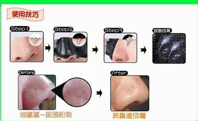 Borong Shiseido Mask foot patch detox original korea shiseido mask borong