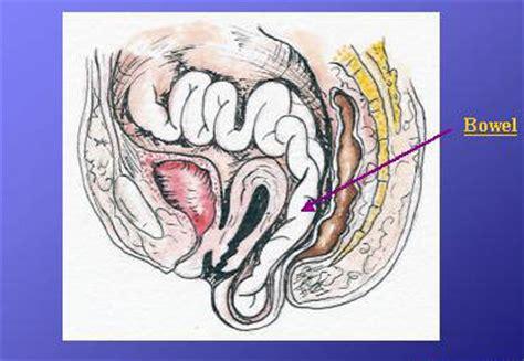 rectocele diagram rectocele treatment options including rectocele repair