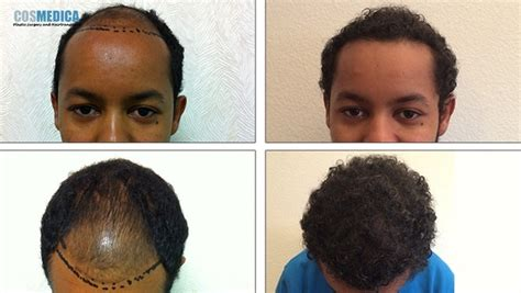 in south africa hair transplant cosmedica hair transplant doctors hairsite com