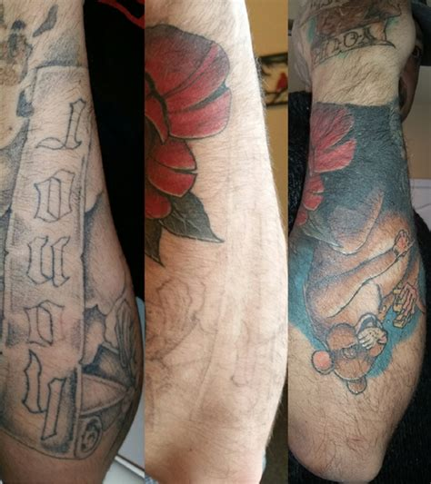 tattoo removal r20 r20 laser removal before and after removal