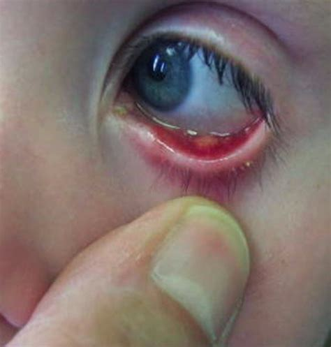 eye stye eye stye pictures treatment symptoms causes contagious