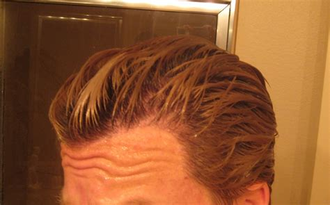 dutasteride for hair loss image