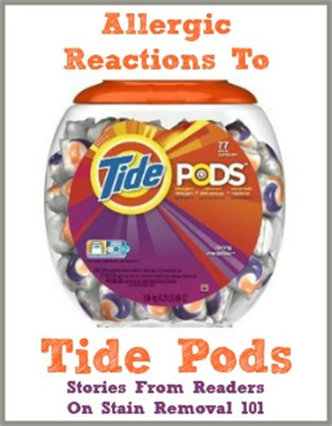 tide pods allergies itchy reactions