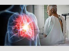 back pain shortness of breath fatigue