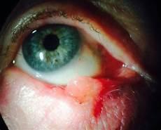 tumeur derrière l oeil ophtalmologie site du chu de poitiers