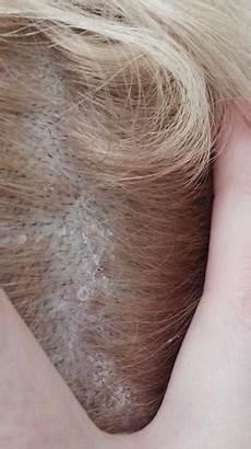 Krusten Auf Der Kopfhaut - klebrige stellen schuppen auf der kopfhaut schuppen
