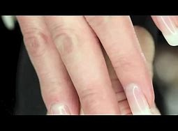 Calluses from sex