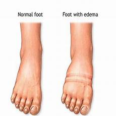 Water Retention In The Legs Causes Treatments Md