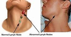 geschwollene lymphknoten hals einseitig when your sore throat might be a sign of something more
