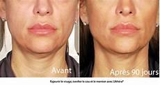rajeunir le visage sans chirurgie avec l ultherapy