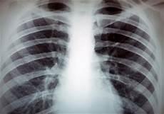 voile au poumon le t 233 l 233 gramme monde cancer du poumon du non fumeur