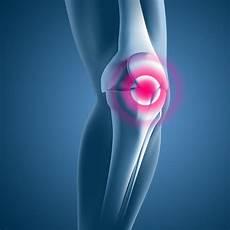 Schmerzen Unter Der Kniescheibe - knorpelschaden kniescheibe behandlungsformen im