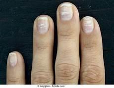 fingernägel längsrillen ursache wei er fleck auf zehennagel ursachen schwindel