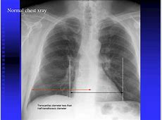 chest x ray interpretation pneumonia