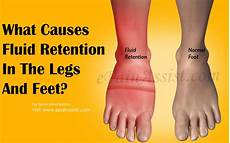 What Causes Fluid Retention In The Legs And