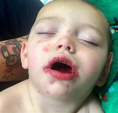 herpes bei babys baby juliano rodgers catches herpes from family friend who