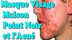 Masque Visage Maison Point Noir Et L Acn 233