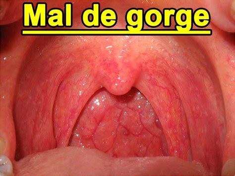 Amygdale Maladie