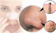 22 ways to get rid of whiteheads nose and chin