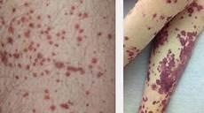 20 Ciri Ciri Demam Berdarah Dengue Dbd Mediskus