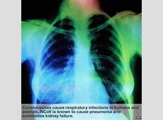 isolation precautions for coronavirus oc43