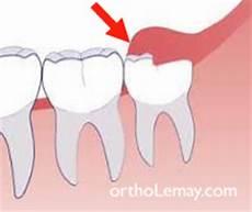 calmer douleur dent de sagesse wisdom teeth third molars myths and realities