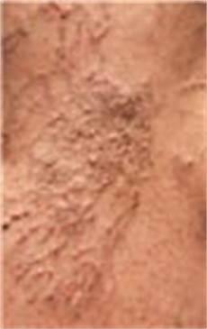 können sich krfadern zurückbilden besenreiser venen schaumver 246 dung thermo skin