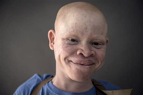 Africain Albinos