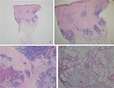 lupus erythematosus tumidus of the scalp masquerading as alopecia areata mdedge dermatology