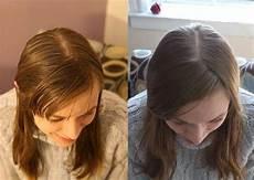Haare Mit Natron Waschen - den schalter umzudrehen und die haare mit natron und