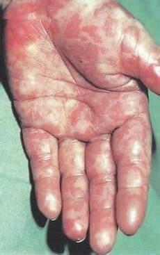 Toxisches Schock Syndrom - exanthem bei kindern ausschlag ekzem scharlach