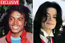Michael Jackson Haut - michael jackson king of pop s white skin cause exposed